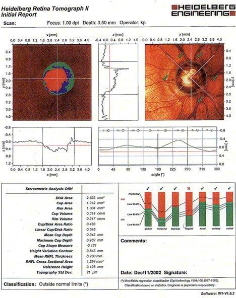 Heidelberg Retinal Tomograph
