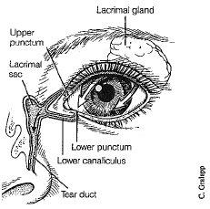 overflow tearing toronto eye clinic
