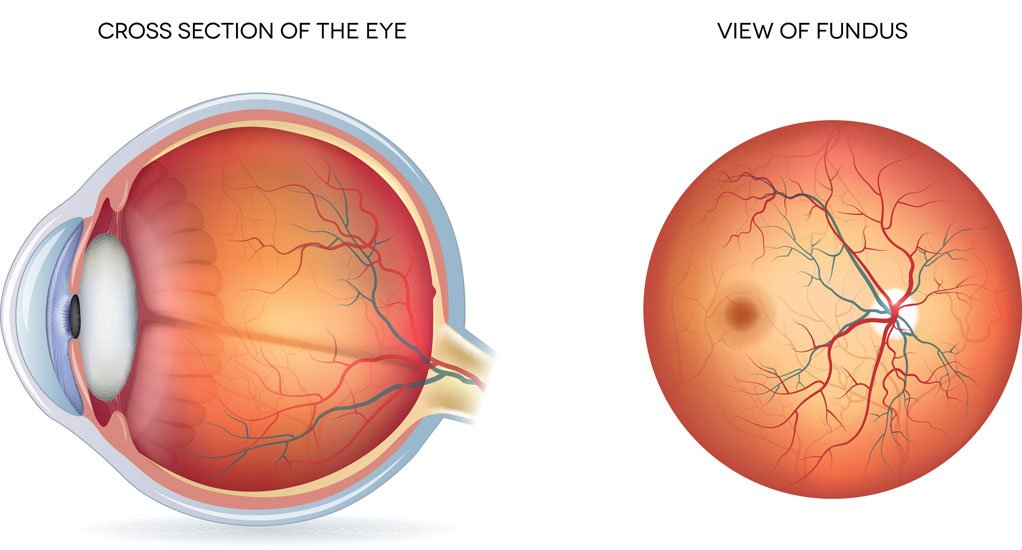 fundus toronto eye clinic