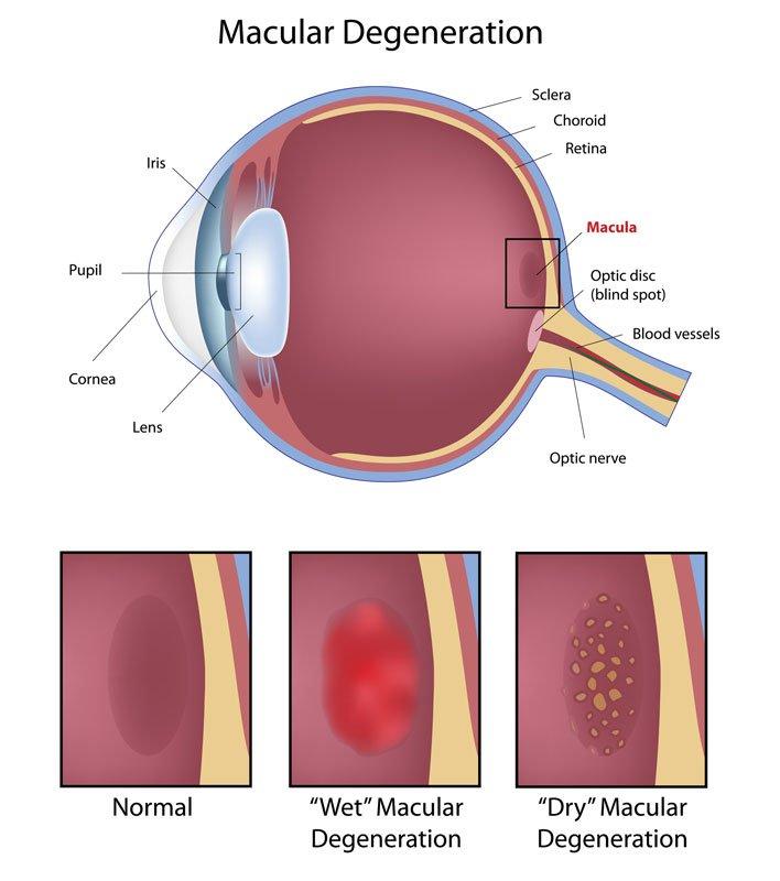 macular degeneration toronto eye clinic