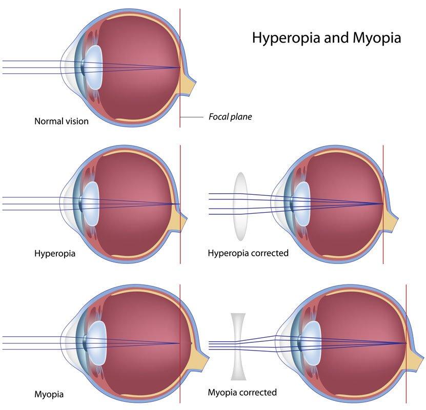 myopia toronto eye clinic