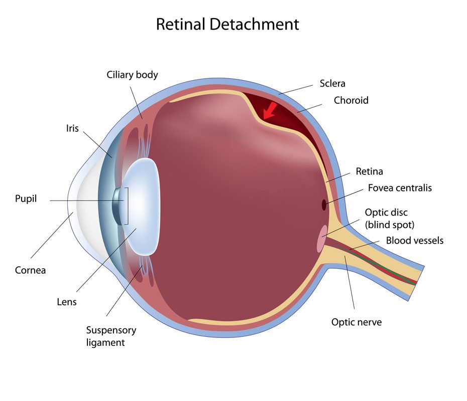 retinal detachment toronto eye clinic